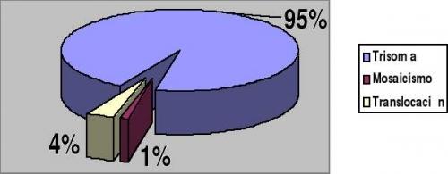 estadisticas sobre tipos trisomias 21