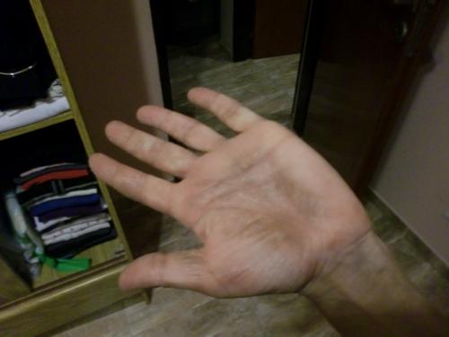Leczema di malattia della pelle a causa che e come trattare