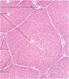 hepatico